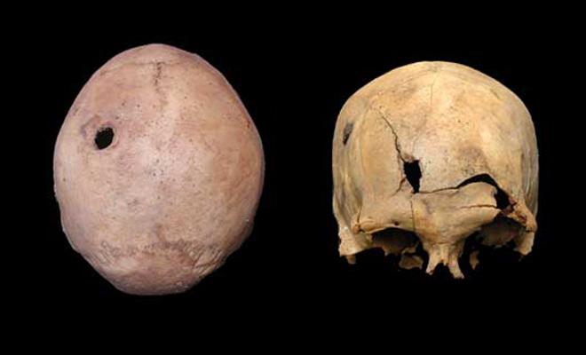 Evidence of Spanish bullet holes in Inca skulls